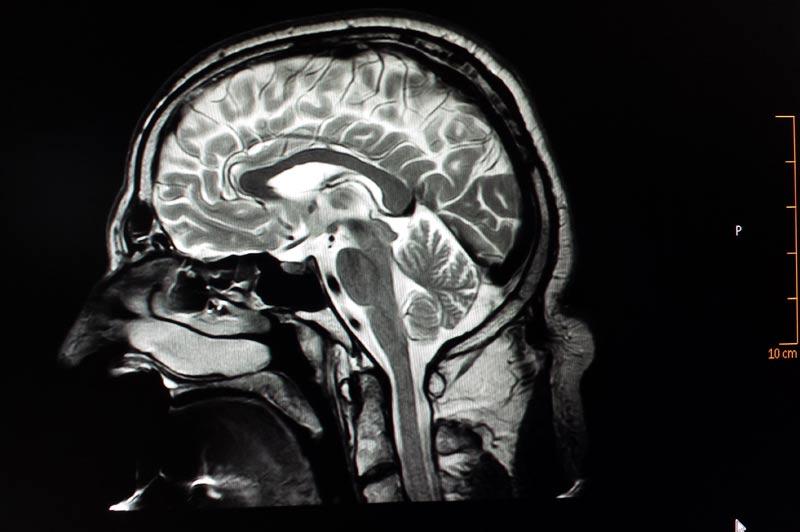 leistungen magnetresonanztomographie gelenke